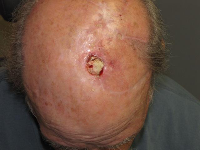 House Calls Radiation Treatment For Non Melanoma Skin